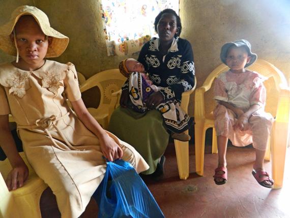 mother-with-three-albino-children