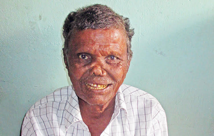 brother eliah, a leprosy-infected patient now home with the Lord