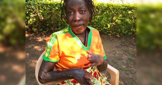 Picture of Ketty, a burn victim in Africa