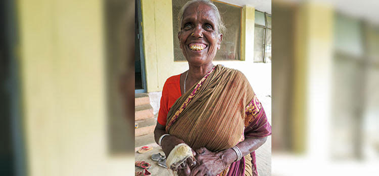 Picture of leprosy patient