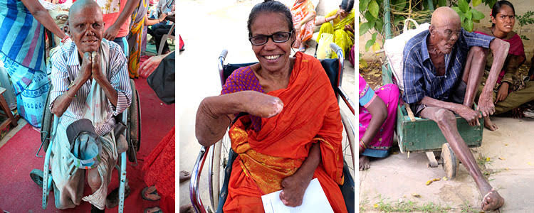 Leprosy ministry photo collage
