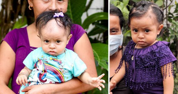 Malnourished child in Guatemala - before and after